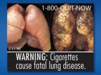 Od września przyszłego roku producenci papierosów w USA muszą sprzedawać paczki z koszmarnymi zdjęciami odstraszającymi od palenia. fot.fda.gov